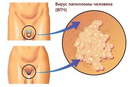 hpv vírus feigwarzen)