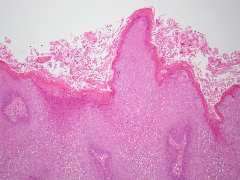 papilloma rák mell a condyloma leghatékonyabb kezelése