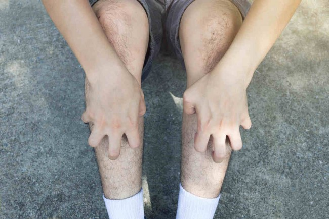 gambar penyakit schistosomiasis)