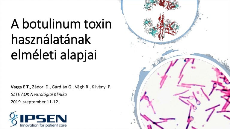 botulinum toxin injekció