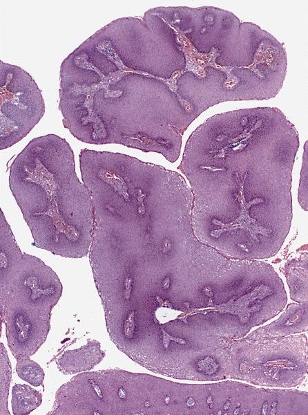 paraziták az emberek gyomrában