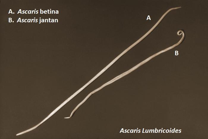 a helmint enterobiosis különbsége