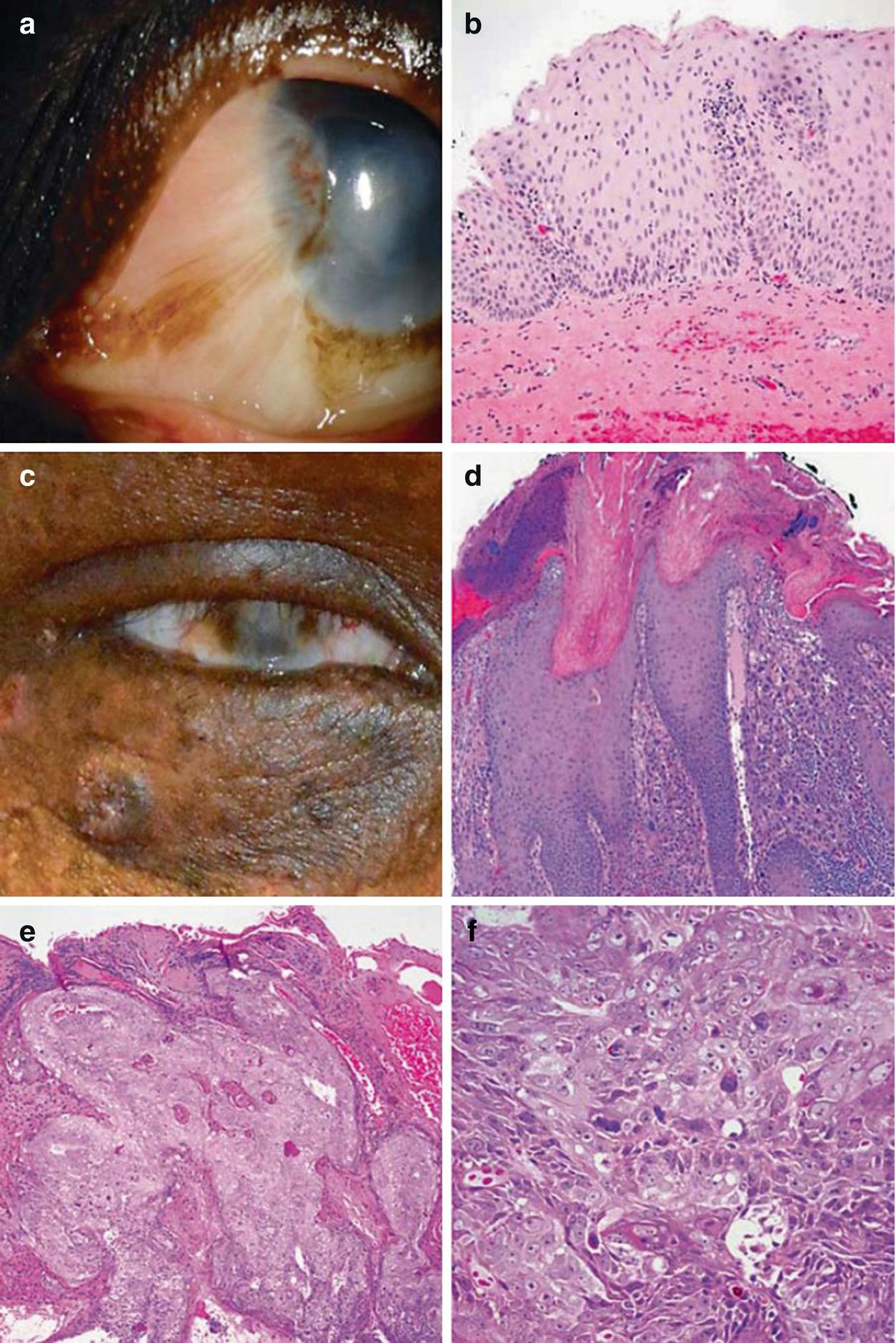 nyaki nyálkahártya és fonálférgek az enterobiosis tünetei egy gyermeknél