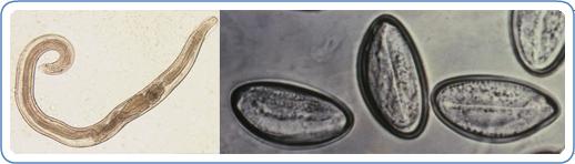 pinworms vermicularis tünetei