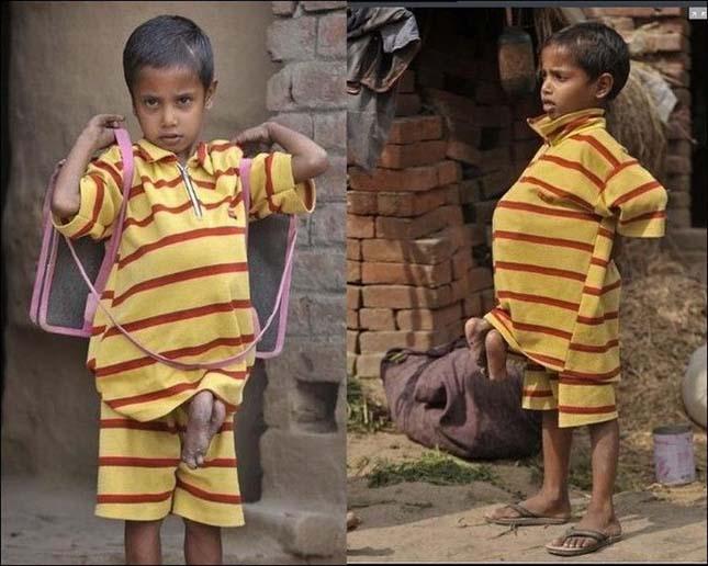 Mellkasából nőtt ki saját ikertestvére, még a körmét is ő vágja