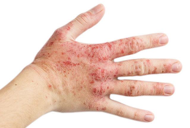 allergiás dermatitis az ujjak között