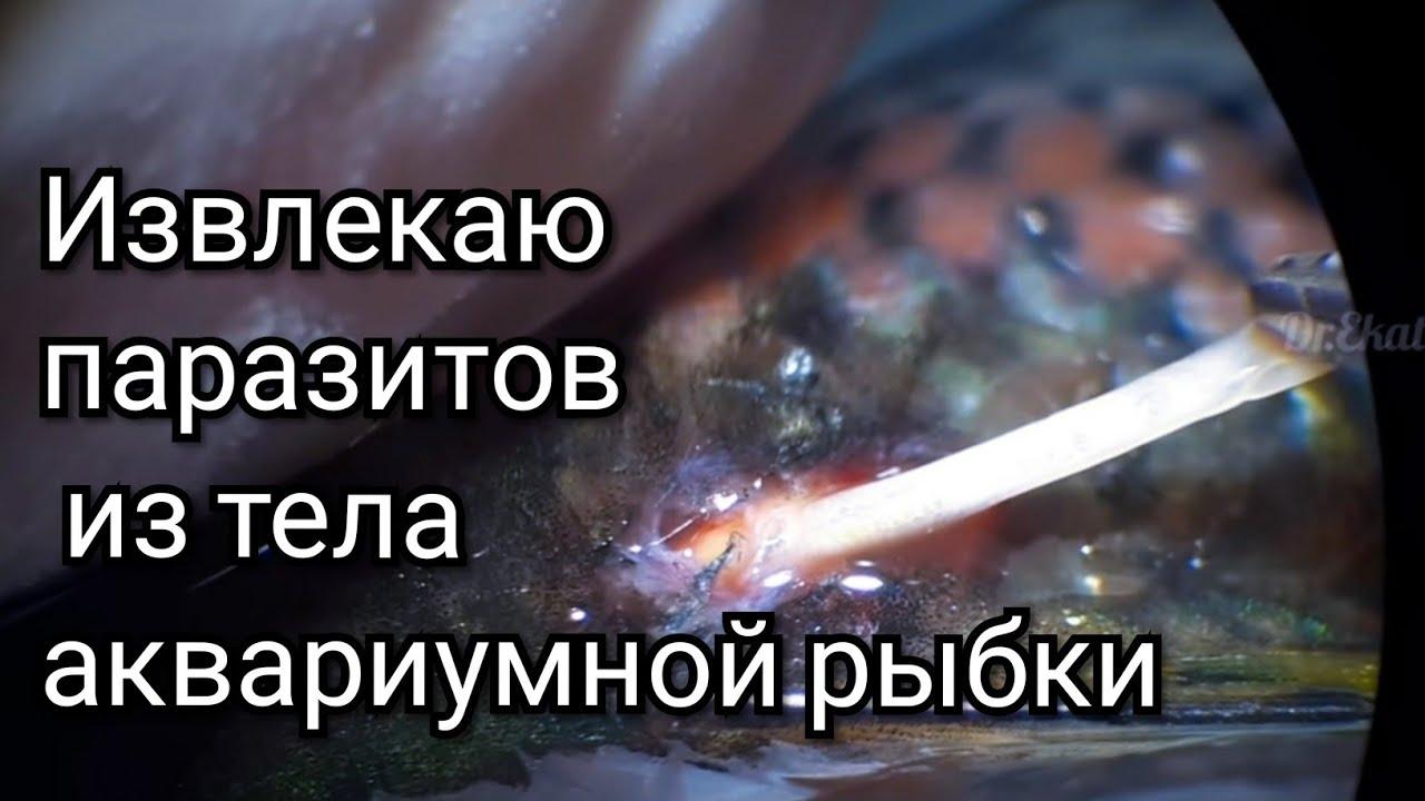 Komplex a test megtisztítására a parazitáktól