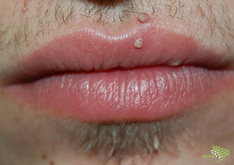 condyloma kezelése az ajkakon)