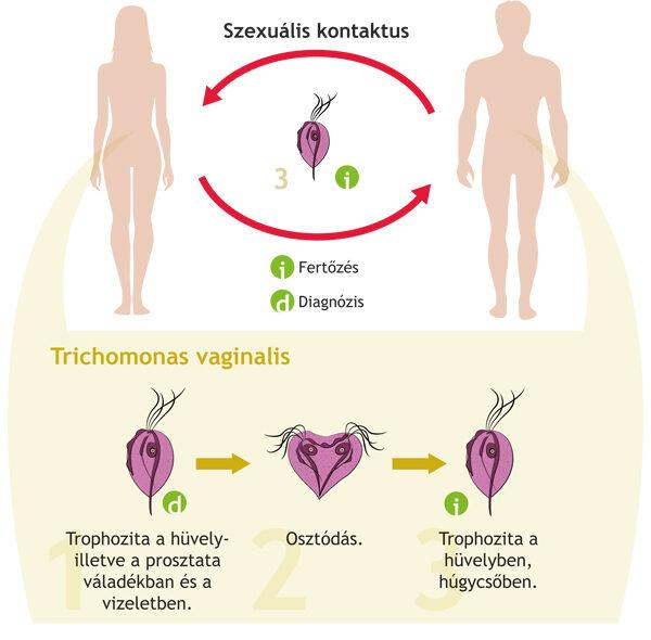 paraziták a prosztata kezelésében helmintikus terápia szorongása