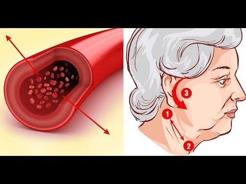 vastagbél peritoneális rákja milyen parazita tabletták a gyomor számára