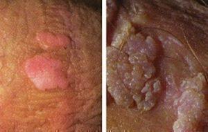 HPV: a méhnyakrák, és a hegyes függöly a nemi szerveken – Biztonsásetalo.hu