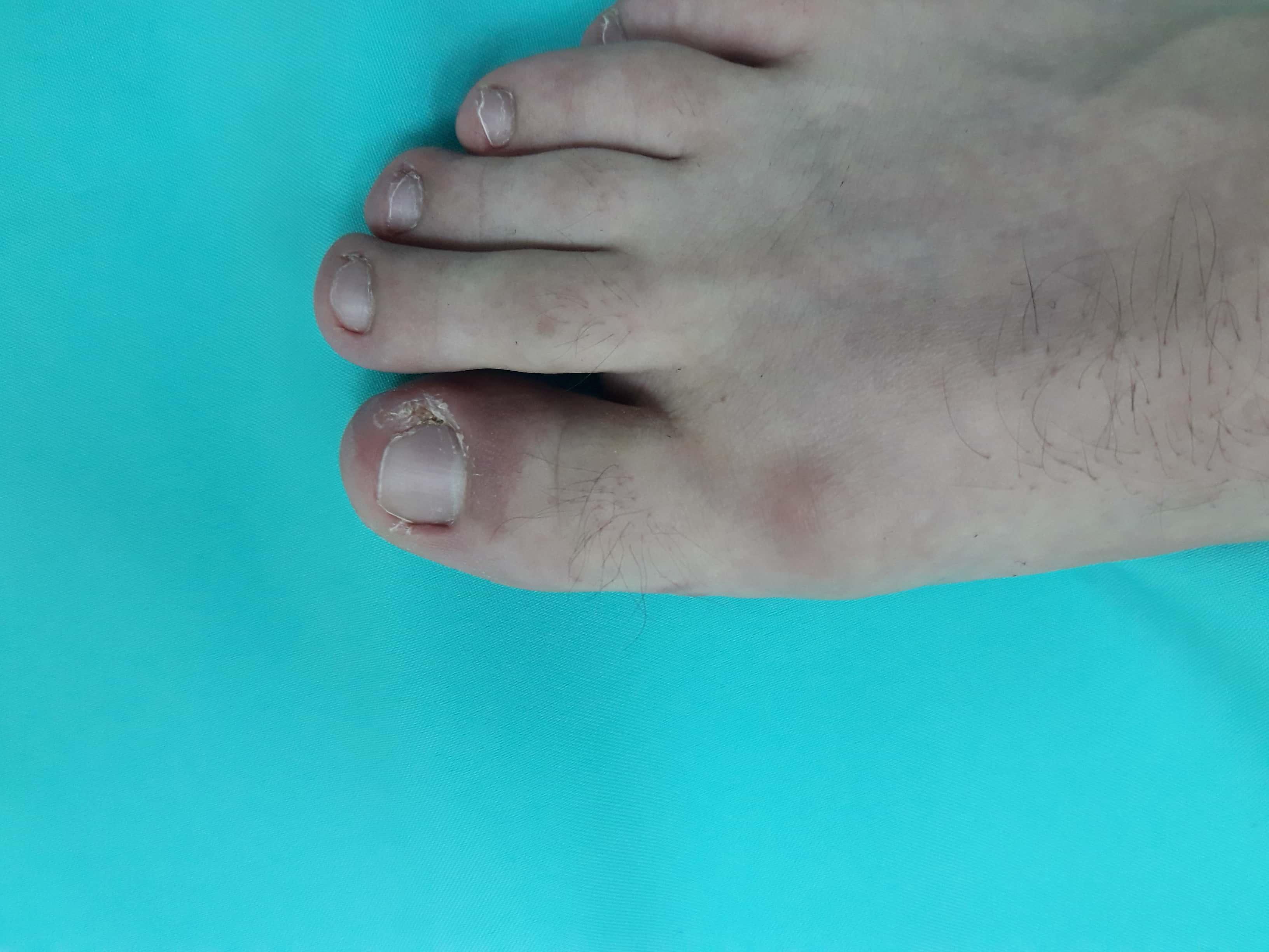 trofikus fekélyek a lábujjak között