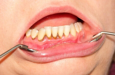 baktériumok a szájban