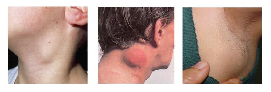 Hodgkin- és Non-Hodgkin lymphoma
