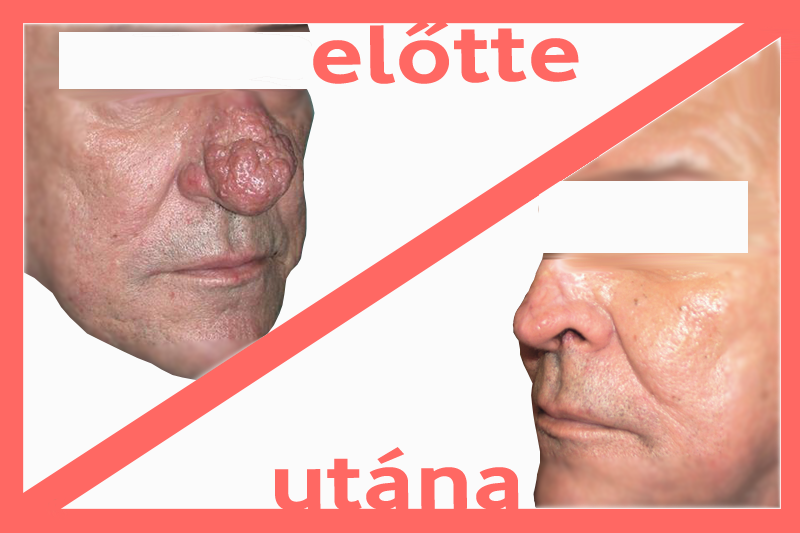 Fordított papilloma sinus orr tünetei)