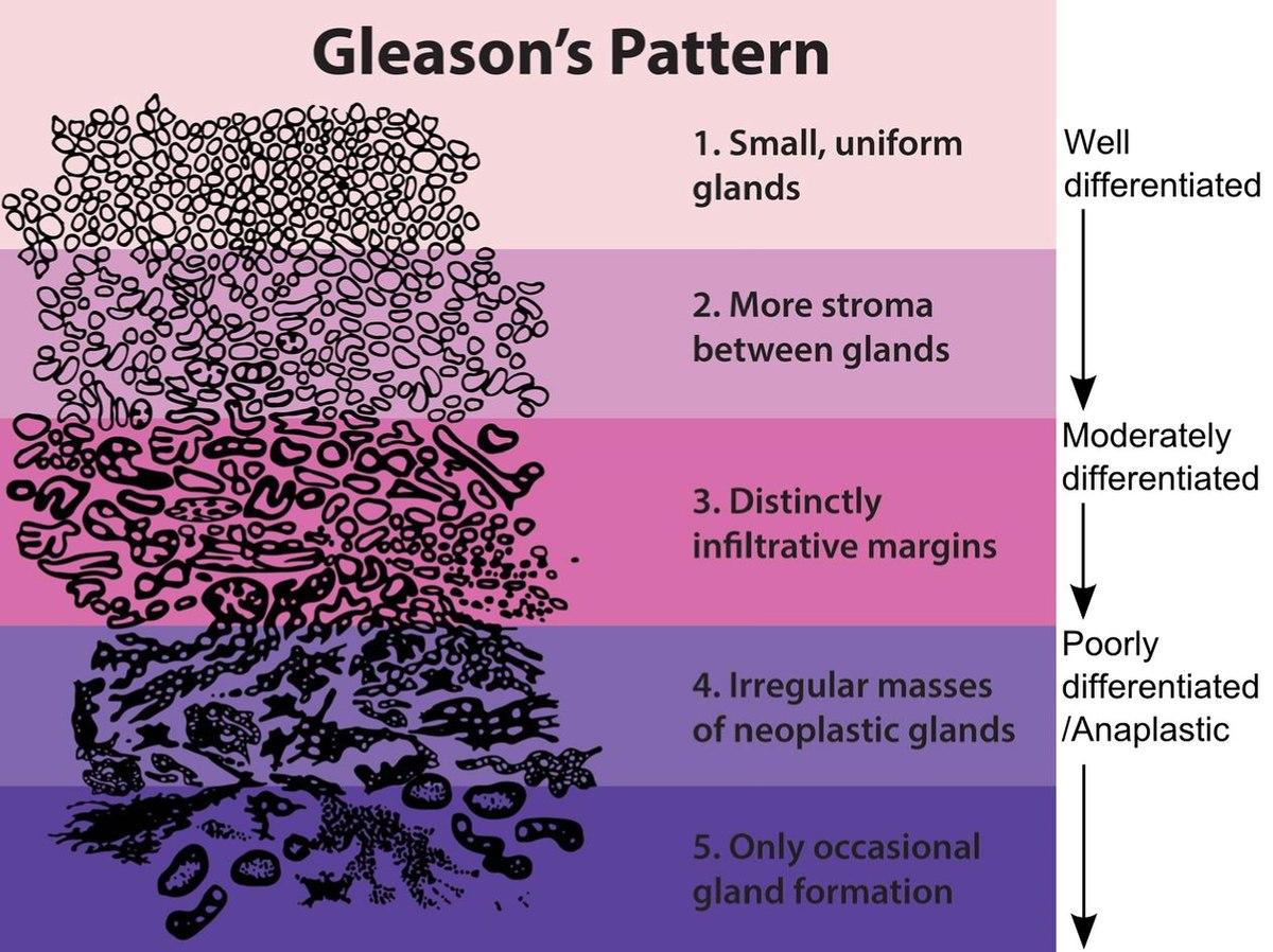 gleason prosztatarák 7 4 3))