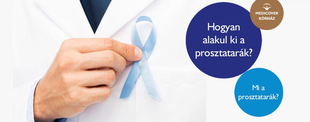 A prosztatarák - Mutáció.hu