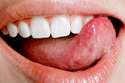 a nyelv patológiájának pikkelyes papillómája