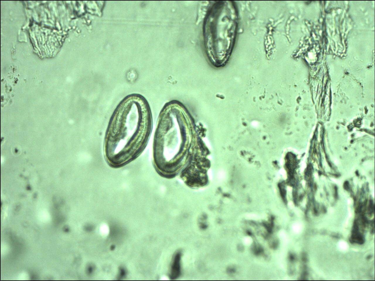 enterobius vermicularis zivotni ciklus