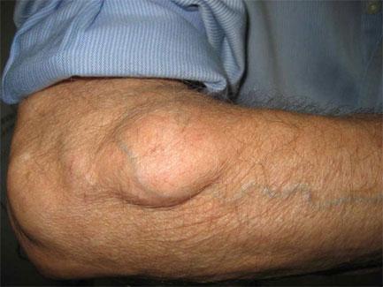 papillomavírusos bőrfertőzés)