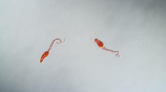 gambar penyakit schistosomiasis