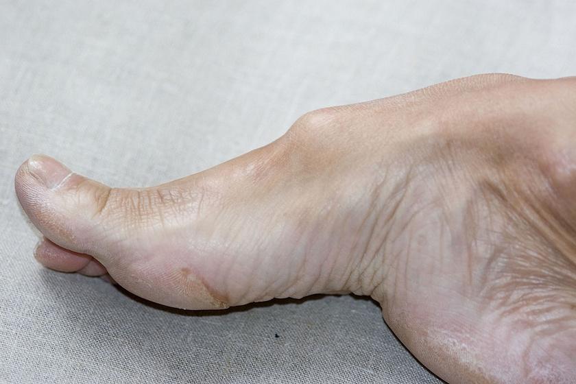 hpv és a láb gyógyulás a nemi szemölcsök eltávolítása után