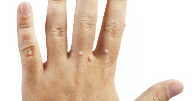 szemölcsök kezelése a kezeken