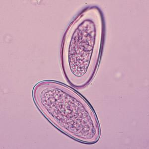 enterobius vermicularis lárva testhosszúságú pinworms