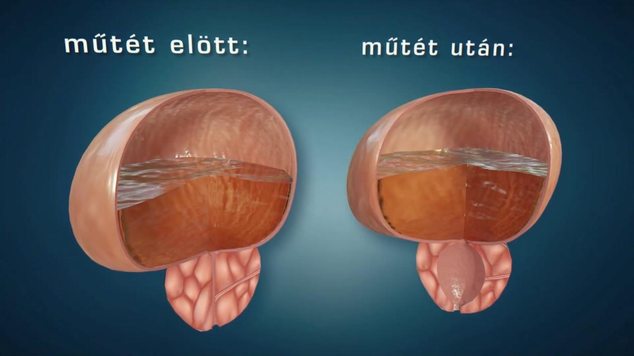 prosztatarák műtét)