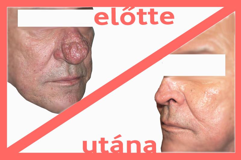 Miért volt növekedés az orrban? A kezelés fő okai és módszerei - Teratoma