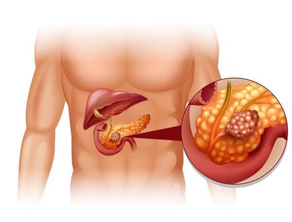 A hasnyálmirigyrák jelzései és tünetei | Wofulo