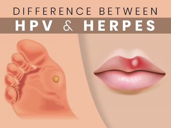 hpv herpes simplex vírus)