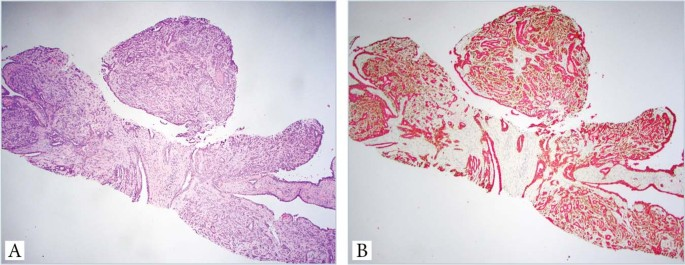 intraductalis papilloma lcisszel