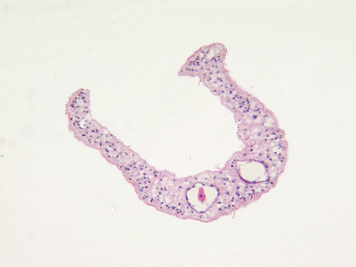 Jamaicai schistosomiasis)