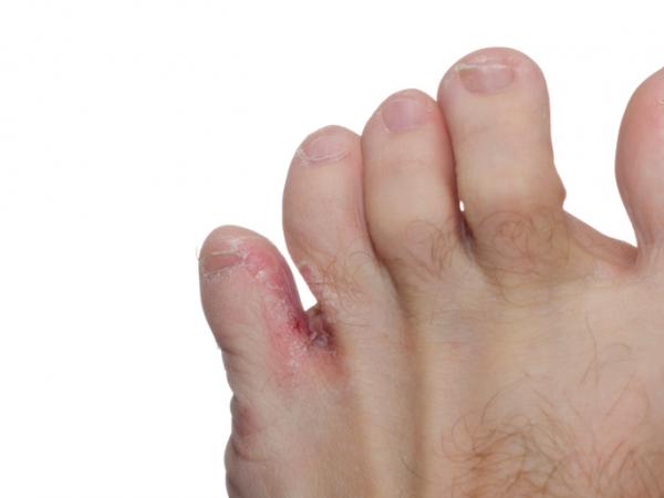 kemény bőrkeményedés a lábujjak között)