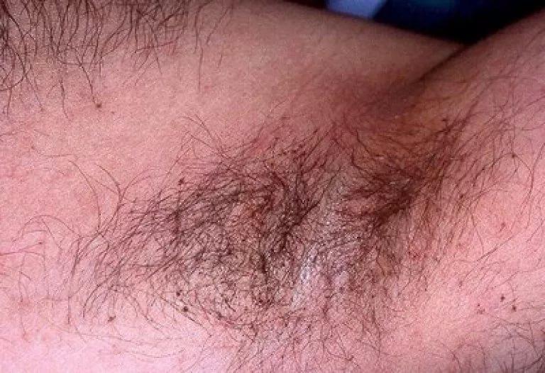 A bőr alatti dudorok kezelése