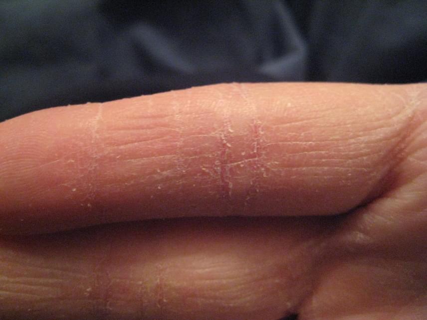 miért nedvesedik az ujjak között)