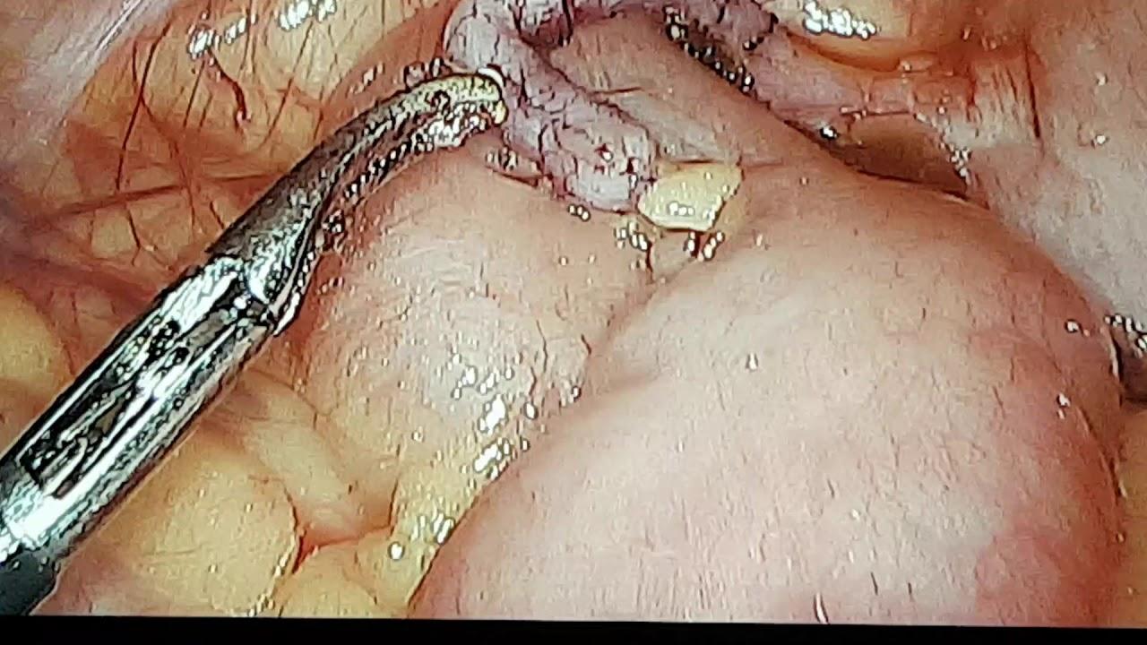 pinworm helminták kezelése)