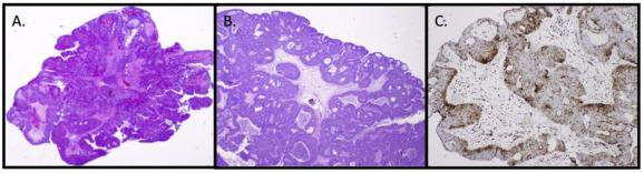 Pikkelyes karcinóma keratinizációja
