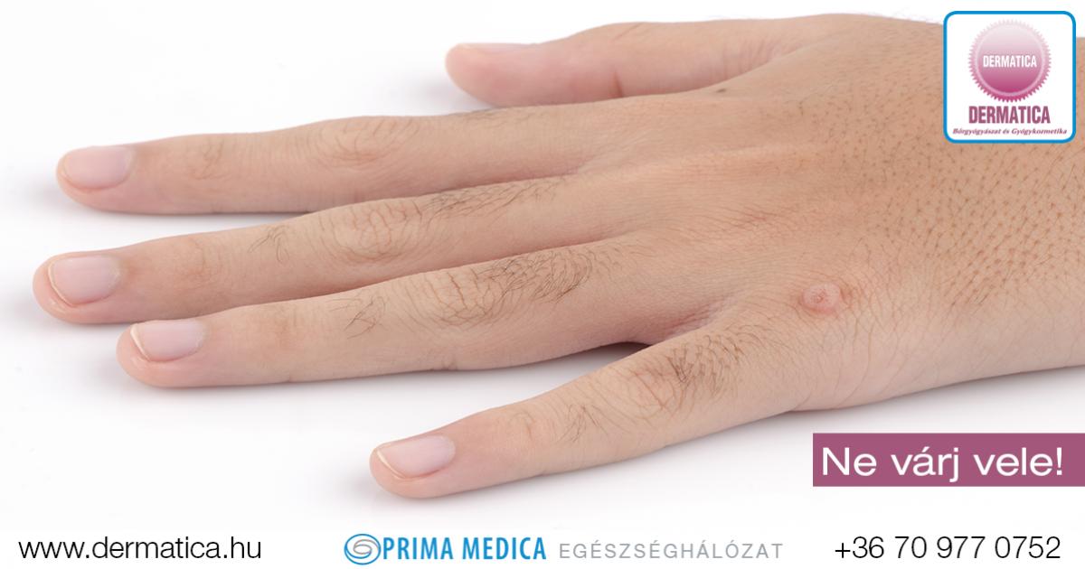 szemölcsök az ujjakon kezelést okoznak)