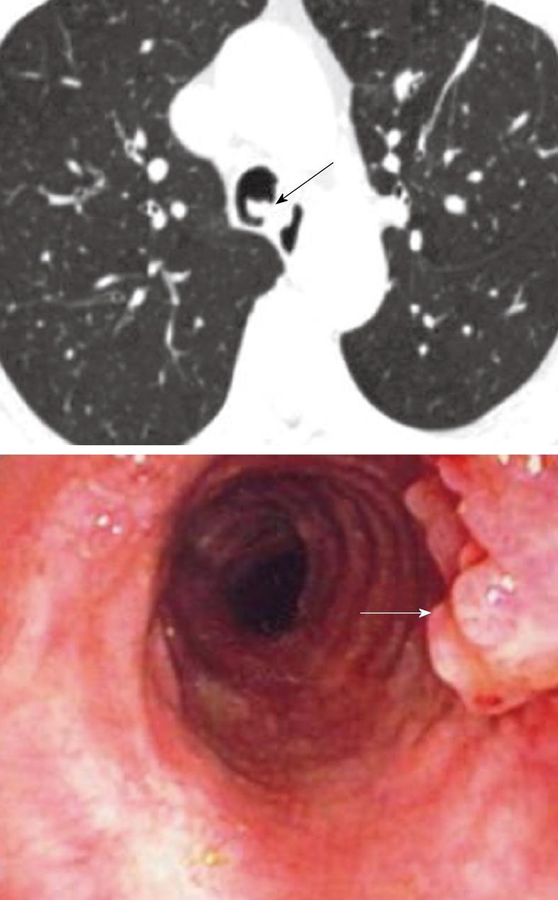 trachealis papillomatosis oka)