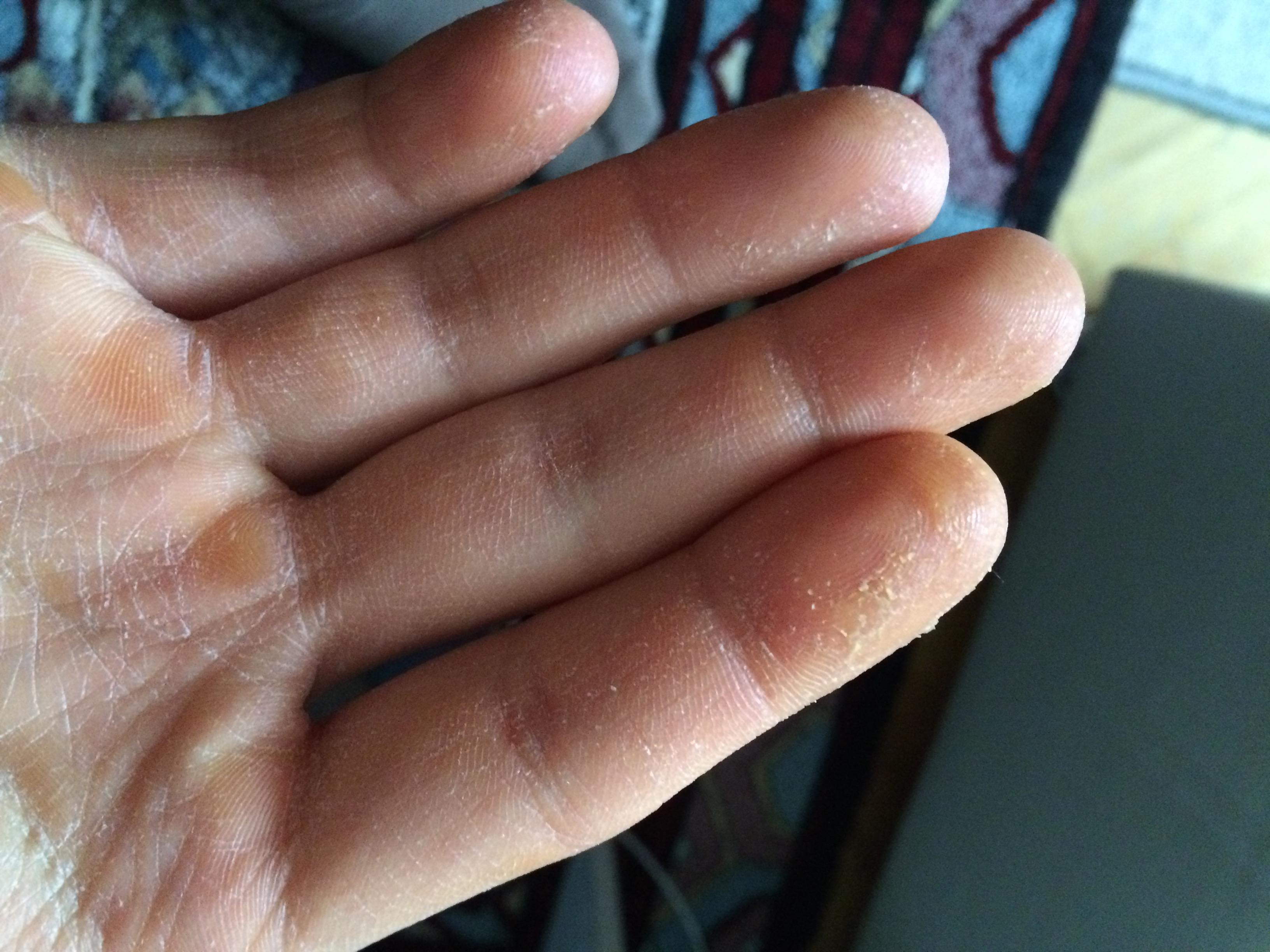 wartox krém a talpi szemölcsökből bőrrák férfiaknál
